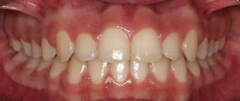 Orthodontics after example 2 | Empire Dental