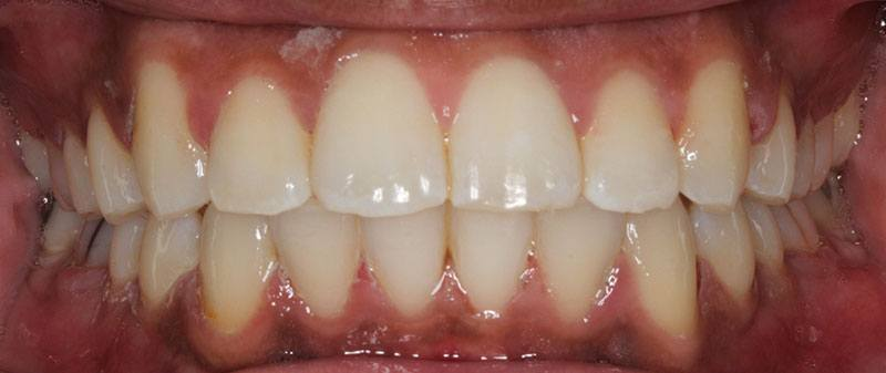 Orthodontics after example 4 | Empire Dental