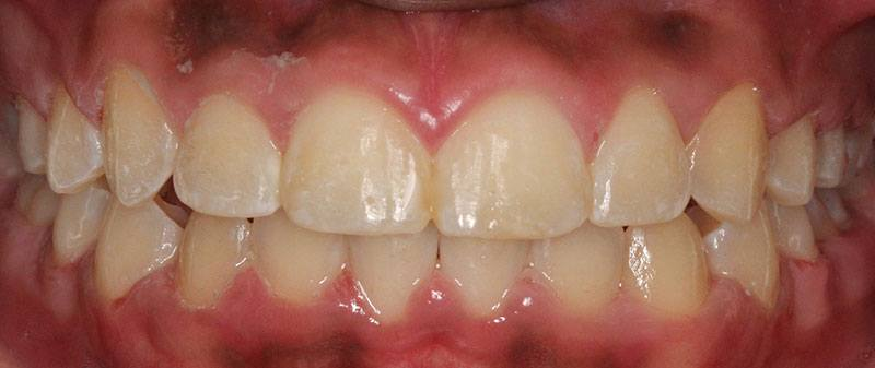 Orthodontics after example 7 | Empire Dental