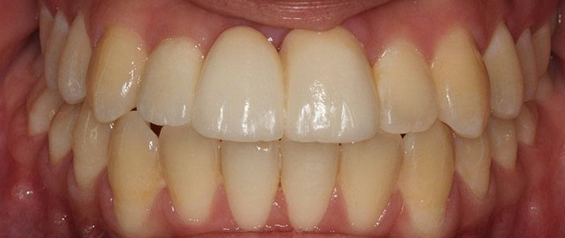 Orthodontics after example 6 | Empire Dental