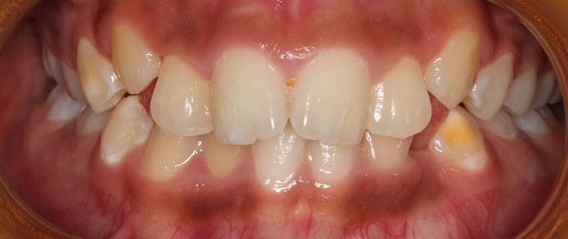 Orthodontics before example 11 | Empire Dental