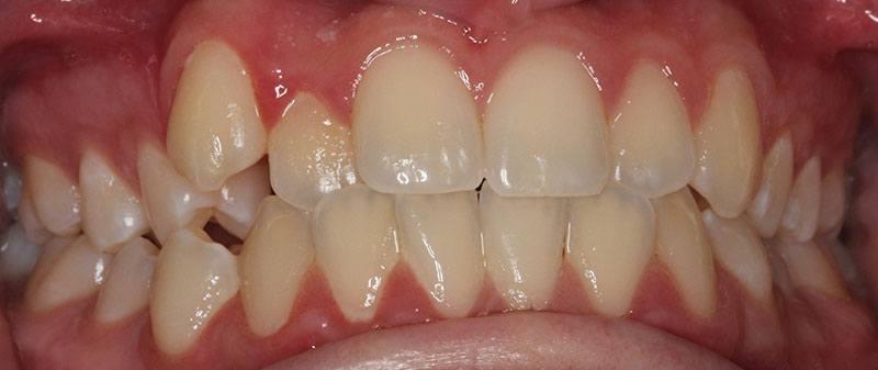 Orthodontics before example 3 | Empire Dental