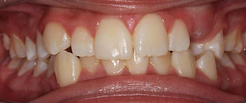 Orthodontics before example 5 | Empire Dental