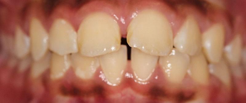 Orthodontics before example 7 | Empire Dental