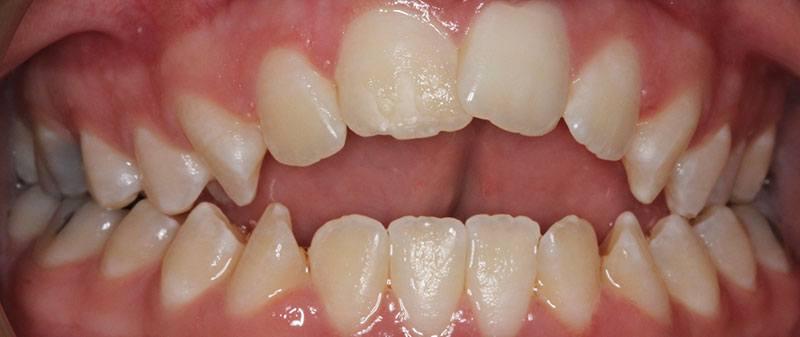 Orthodontics before example 8 | Empire Dental