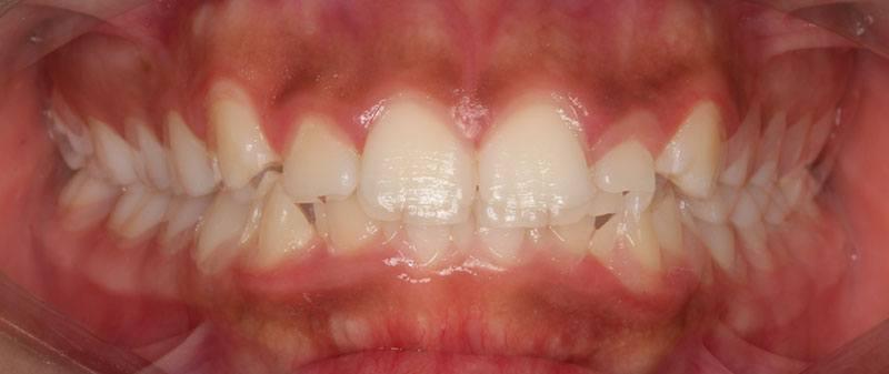 Orthodontics before example | Empire Dental