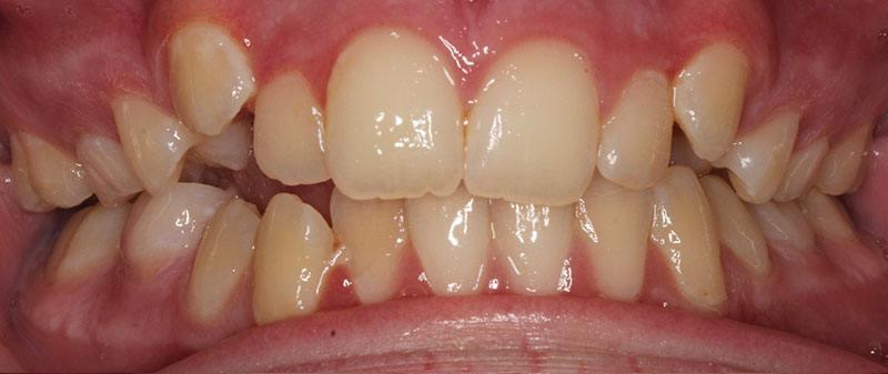 Orthodontics before example 9 | Empire Dental