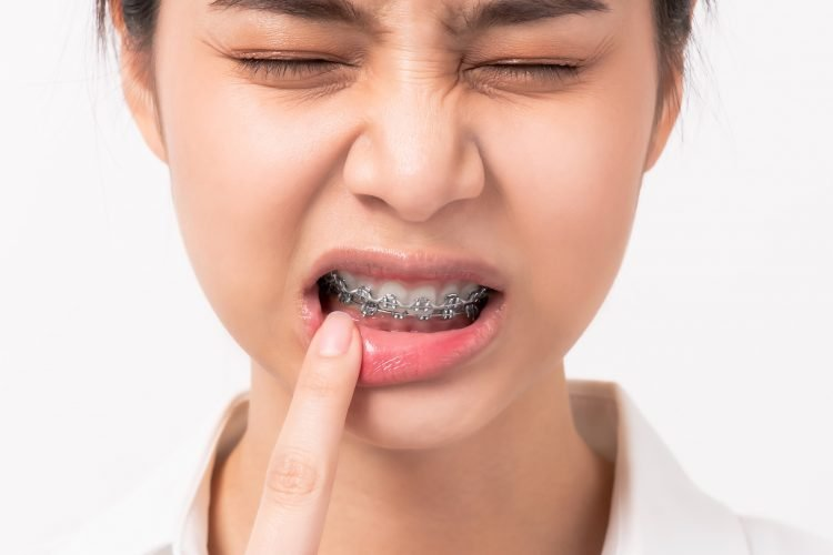 Mouth ulcers from braces