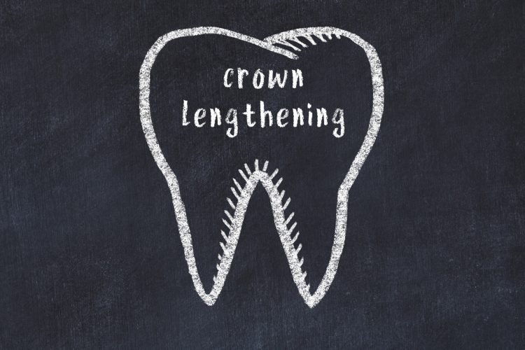 Learn about crown lengthening
