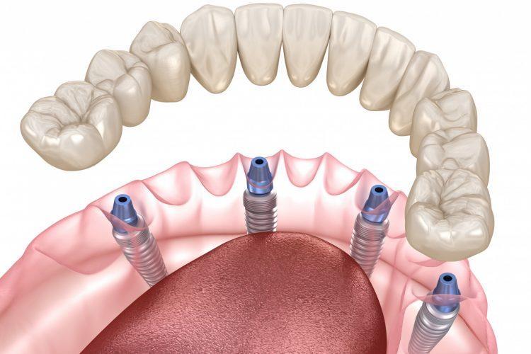 All on 4 Dental Prosthesis